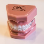 In-Ovation C braces