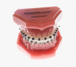 clinique-orthodontie-beaumont-dre-lebuis-traitements-orthodontiques